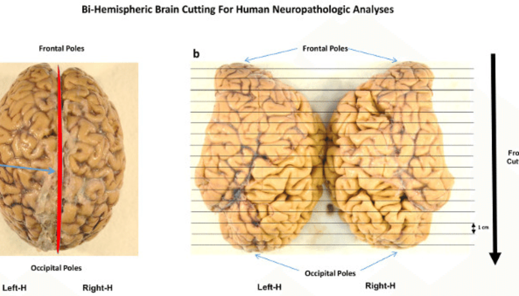 Bihemispheric-Human-Brain-Cutting-Formalin-fixed-human-brain-placed-on-a-flat-surface